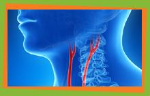 Carotis chirurgie